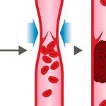¿Por qué ocurre la trombosis venosa?